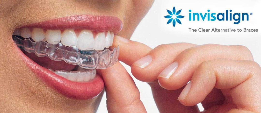 ortodoncia-img