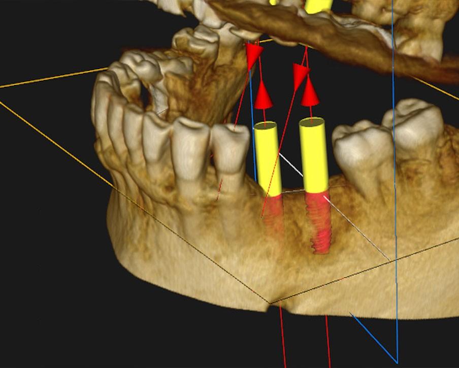 implantologia-1